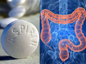 Aspirin Underused In Reducing Colon Cancer Risk