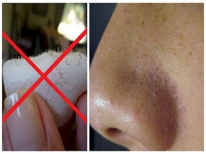 Whiteheads On The Nose How To Get Rid Them With Home Remedies