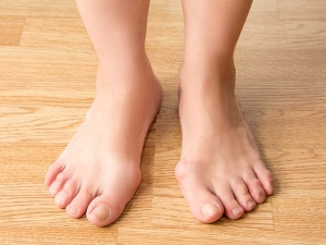 Home Remedies For Big Toe Arthritis