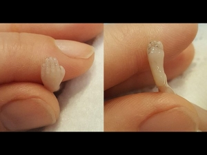Mum Shares Photos Of Her 14 Weeks Old Miscarried Foetus