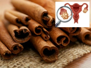 How To Beat Pcos Endometriosis And More With Cinnamon