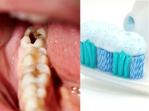Stop Kids From Using Excess Toothpaste As It Leads To Tooth Decay