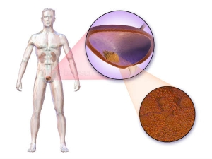 Bladder Cancer Symptoms And Treatment With Home Remedies