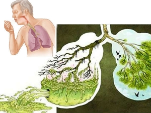 Foods That Destroy Mucus From Lungs