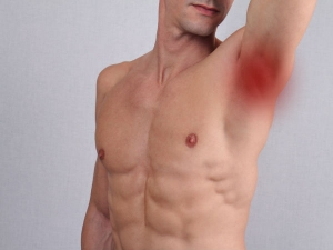 Armpit Signs That Can Indicate Health Issues