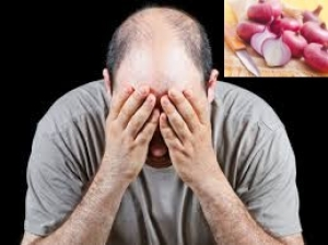 Benefits Of Using Onion Hair Oil