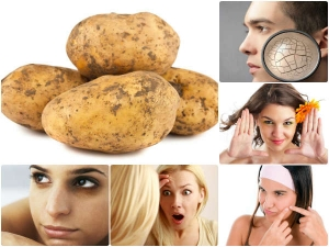 How To Use Potatoes For Acne Scars And Pimple Spots