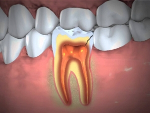 Dental Abscess Types Symptoms Causes Treatment Remedies