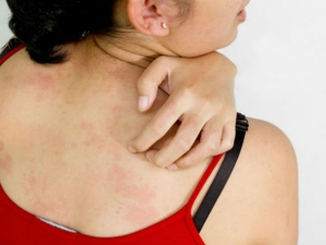 Strange Skin Problems That Could Be A Sign Of A Serious Dise