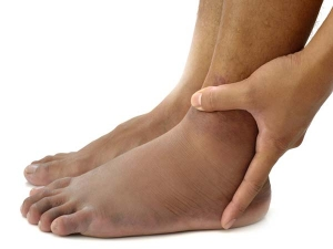 Things Your Swollen Feet And Ankles Tells About Your Health