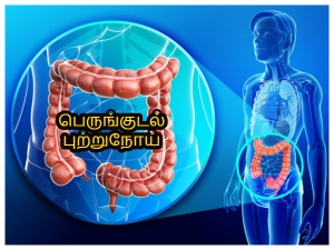 Preventing Colon Cancer Starts In Your Refrigerator