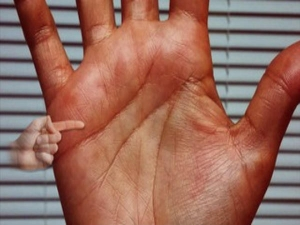 Sun Line In Palmistry Meaning