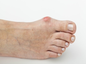 Bunions What Is A Bunion And Its Causes Symptoms And Treatment