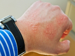 Scabies Symptoms Causes And Treatment