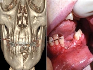 A Vape Pen Explodes And Shatters Teen S Teeth