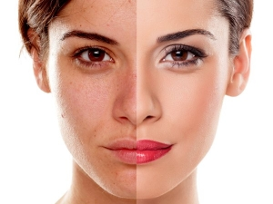 Melasma Causes Treatment And Remedies
