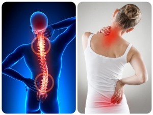 Top 9 Natural Healthy Foods For Back Pain Healing