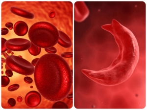 Manage Sickle Cell Disease With Smart Food Choices