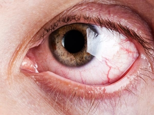 Causes Of Blindness Types Symptoms And Treatment