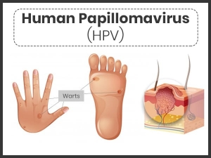 Human Papillomavirus Infection Symptoms Causes Risk Factors And Treatment