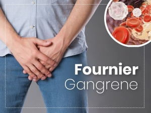 Fournier Gangrene Causes Symptoms Risk Factors Treatment And Prevention