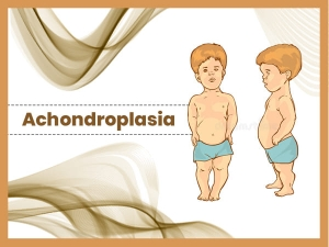 Achondroplasia Causes Symptoms Diagnosis And Treatment