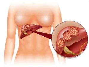 Hepatitis C What Happens In End Stage Liver Disease