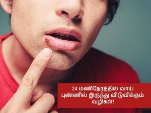 Troubled Due To Mouth Ulcers Get Respite With These Home Remedies