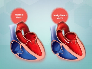 What Is Leaky Heart Valve Its Symptoms Causes And Treatment