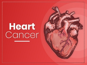 Heart Cancer Causes Symptoms Risk Factors Treatment And Prevention