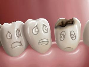 Diwali 2019 How You Can Have Cavity Free Teeth This Festive Season