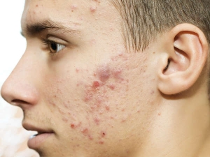 Skin Problems Caused By Vitamin Deficiency And Unhealthy Diet