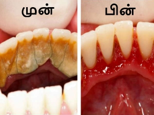 Try This Method To Remove Plaque From Teeth Within A Week