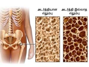 Ways To Restore Bone Density