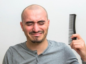 Is It Normal To Go Bald At The Age Of 25 Let S Find Out