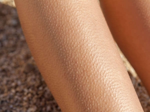 Goosebumps What Are They And Why You Get Them