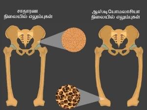 Osteomalacia Causes Symptoms Risk Factors And Treatment
