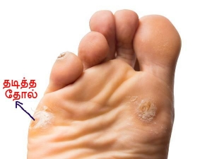 The 2 Ingredient Home Remedy To Treat The Problem Of Calluses