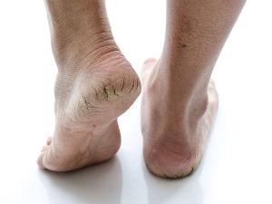Black Salt For Skin And Hair Get Rid Of Dandruff Cracked Heels And Dead Skin