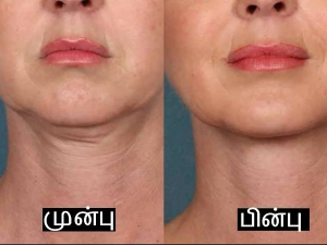 What Causes Neck Wrinkles And How To Get Rid Of Them
