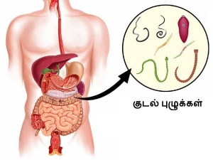 Village Remedies To Kill Stomach Worms Naturally