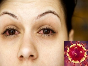 Is Pink Eye A Symptom Of Coronavirus