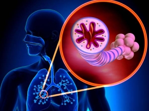 World Asthma Day Natural Ways To Cure And Control Asthma