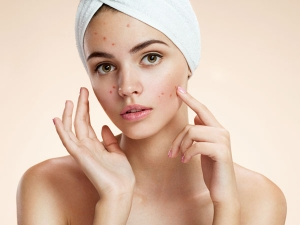 Natural Ingredients You Should Never Use Directly On The Face