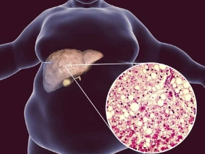 Problems From Fatty Liver