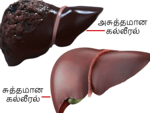 Signs That Point Your Liver Needs Cleansing