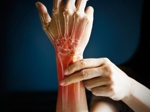 Diabetic People Are More Likely To Get Bone Fractures