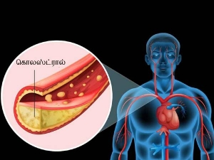 Mistakes That Could Lead To Increased Cholesterol Levels