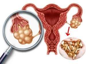Top 5 Nuts For Pcod Treatment And The Best Way To Have Them