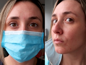 Face Mask Skin Irritation Is Real Follow These Basic Tips For Irritation Free Skin